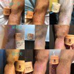 「艾膚膏」公司養生新產品