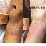 艾膚膏售罄🥶🥶🥶下一批真係唔知幾時返,留意Facebook公布🥶🥶🥶🥶